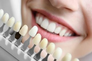 Teeth-whitening Simply Radiant